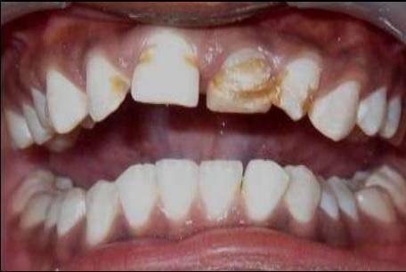 Гипоплазия зубной эмали: причины, симптомы и лечение