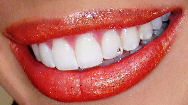 Украшения на зубы: грилзы, скайсы, twinkles