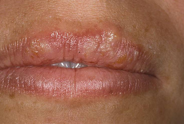 Кандидоз ротовой полости и уголков рта
