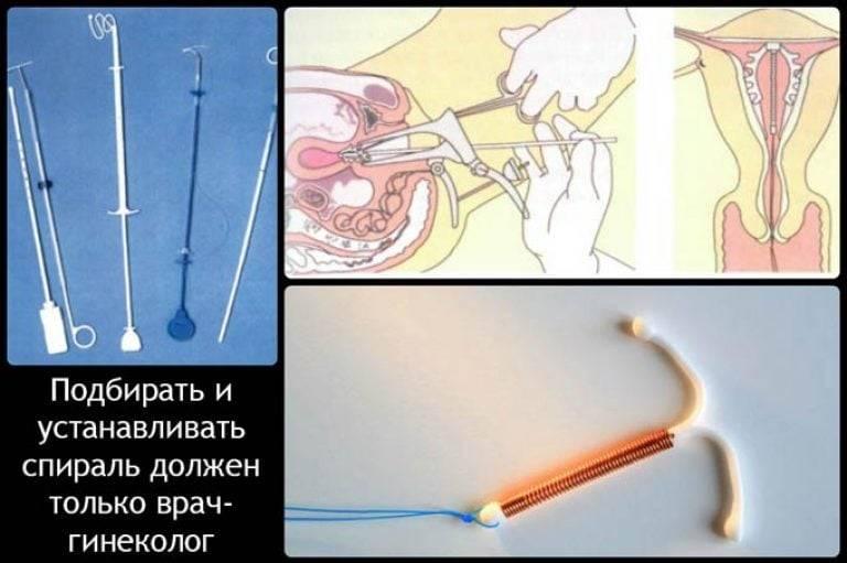 Как устанавливают вмс (внутриматочную спираль)