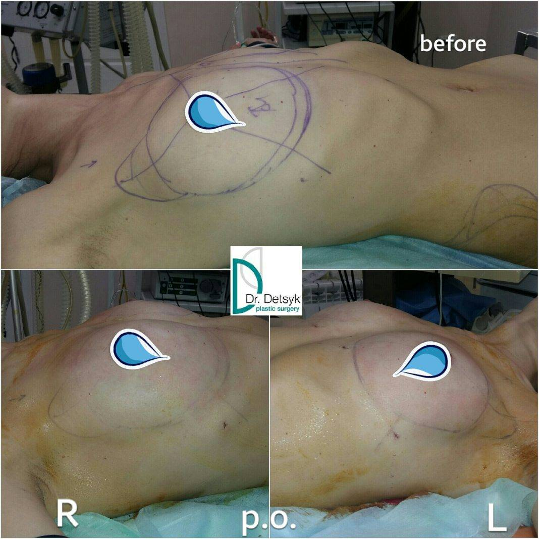Описание операций якорной подтяжки груди, эндопротезирования и мастопексии с имплантами