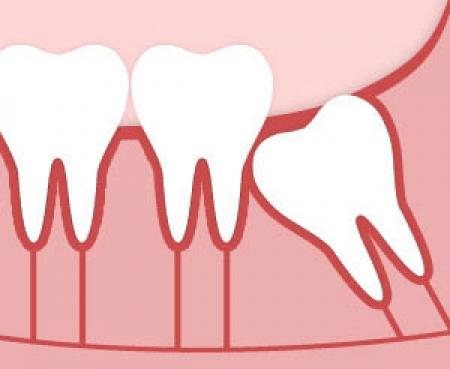Можно ли удалять зуб женщинам во время месячных