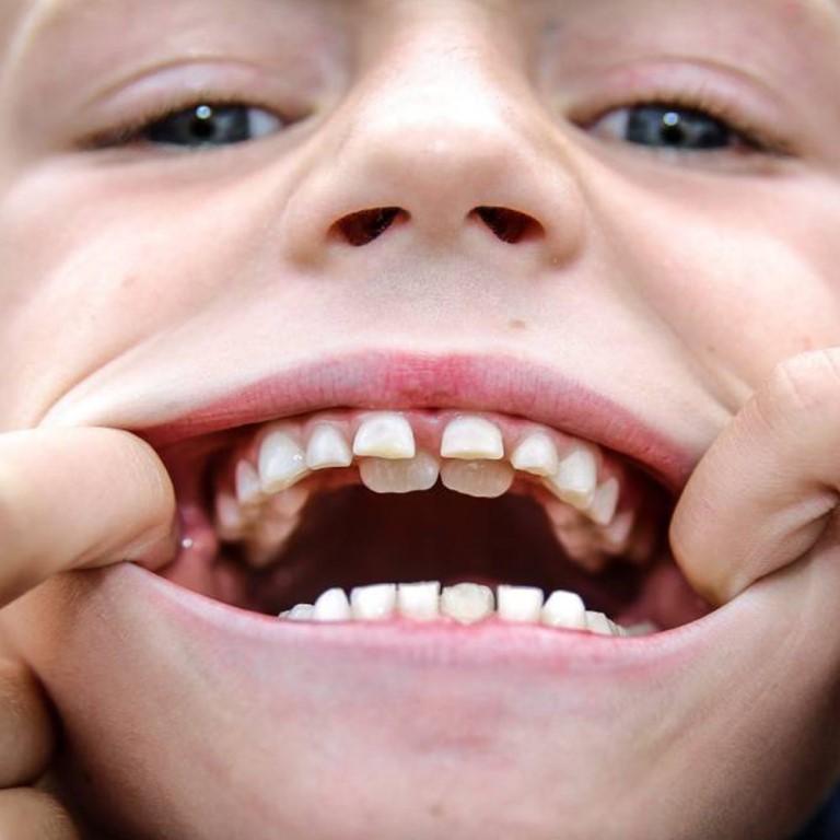 Что такое полиодонтия у людей? полиодонтия у человека