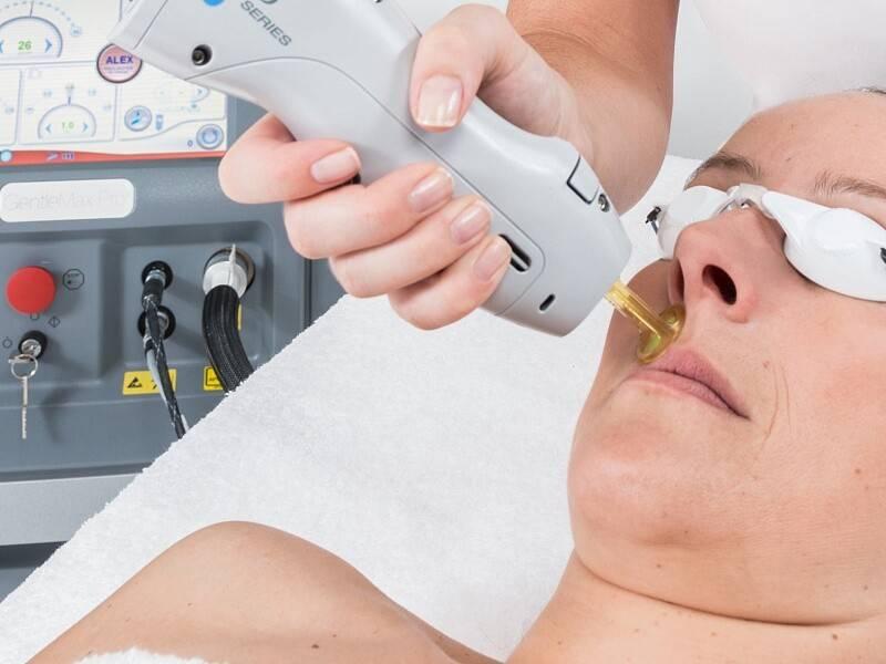 Александритовый лазер – оптимальный способ удаления нежелательных волос