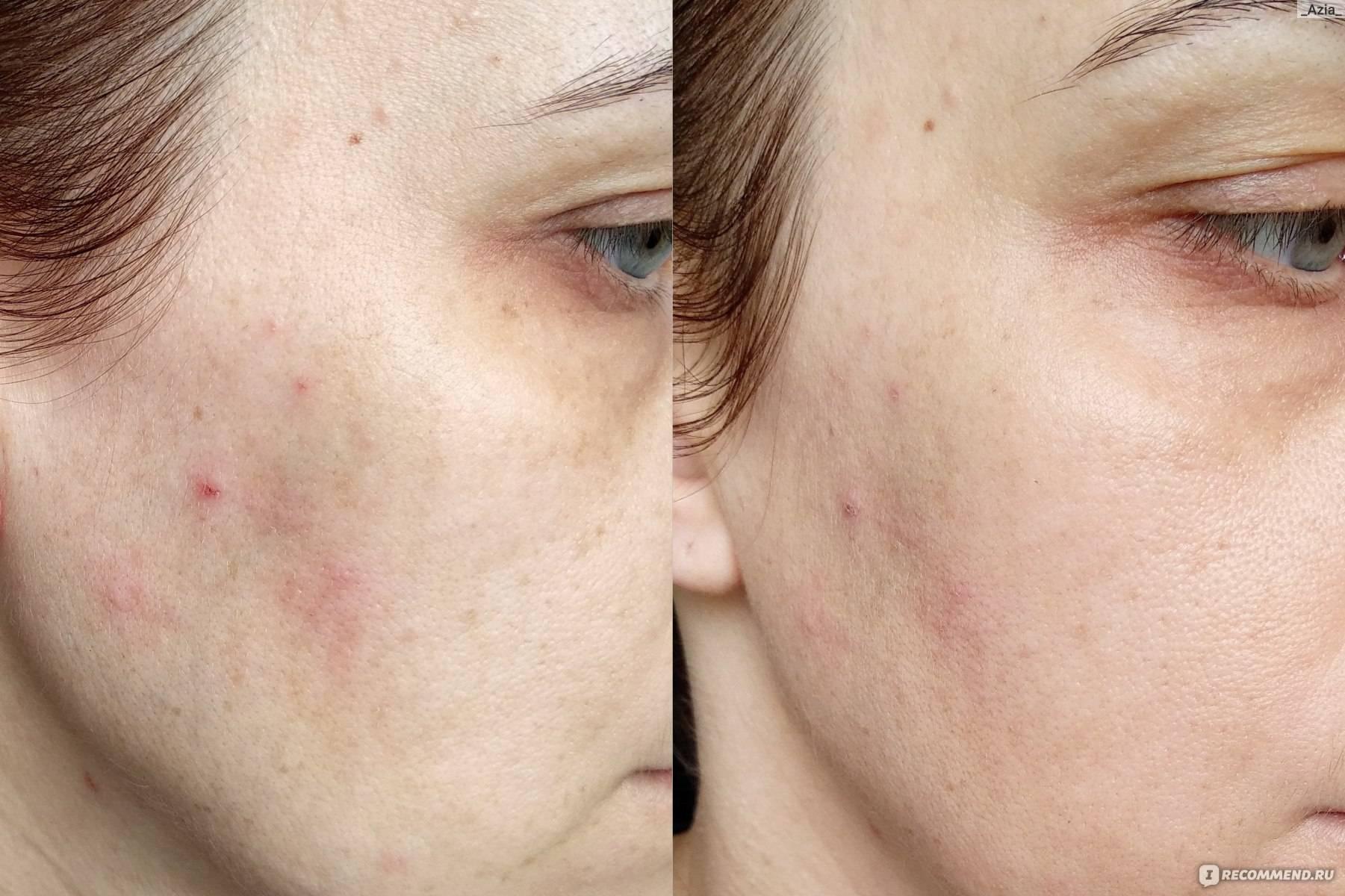 Обзор натуральных тональных средств, которые не навредят вашей коже