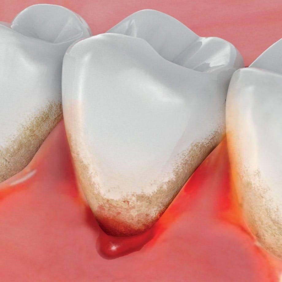 Причины кровотечения десен при чистке зубов и его лечение