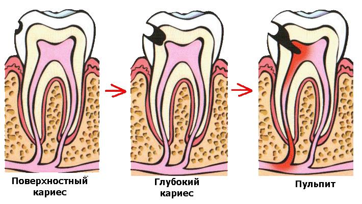 Болит зуб под пломбой — причины, что делать