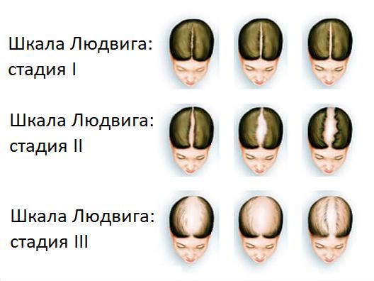 Особенности стимуляции овуляции при поликистозе яичников