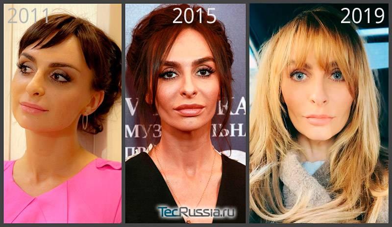 Екатерина варнава: разница во внешности до и после пластики