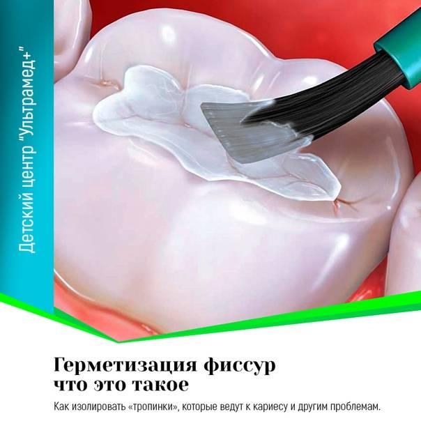 Герметизация зубов у детей – нужна ли процедура