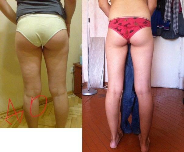 Обертывания против целлюлита: эффект существенный или иллюзорный?