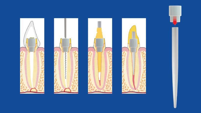 Стекловолоконный штифт – особенный материал для сложных манипуляций в стоматологии