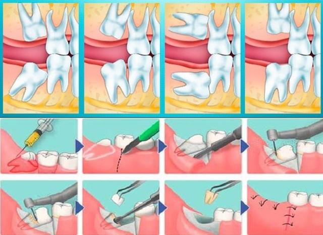 Болит горло после удаления зуба – что делать