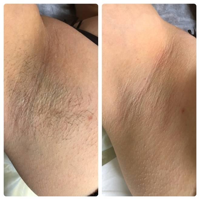 Требования к длине волос для эпиляции воском