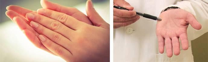 Излишнее потоотделение, или гипергидроз: лечение в домашних условиях