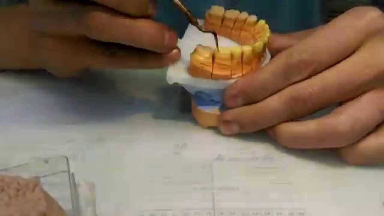 Моделирование зубов: виды, техники выполнения, фото
