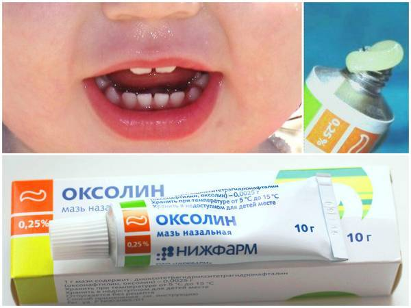 Лечение стоматита медом у детей