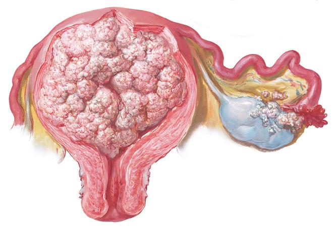 Рак яичников – симптомы, лечение и возможные прогнозы