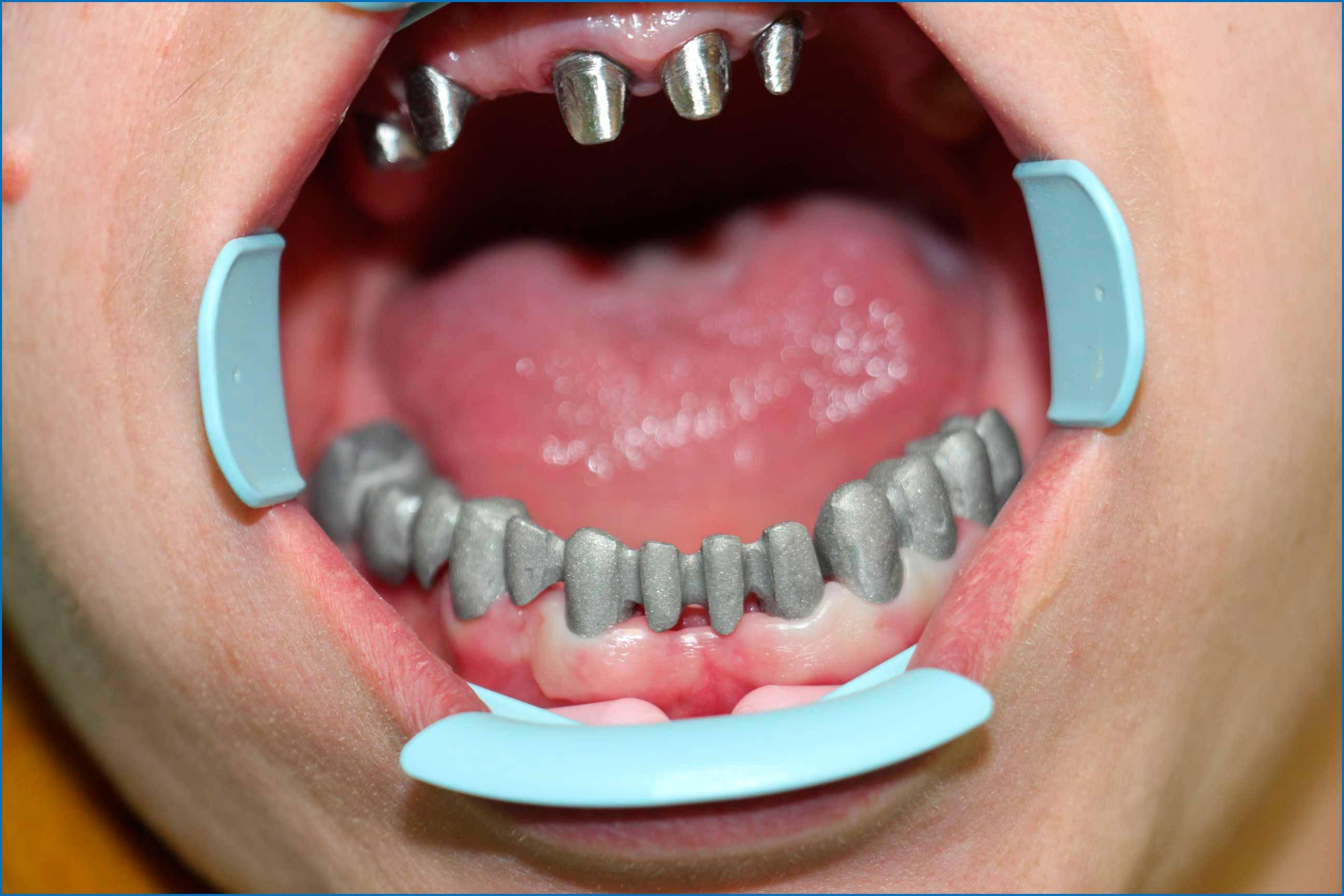 Как ставят коронку на зуб и больно ли ее поставить, обзор цен