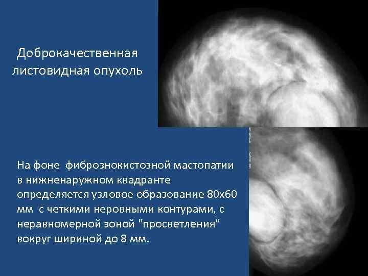 Воспаление лимфатических узлов в молочных железах и его лечение