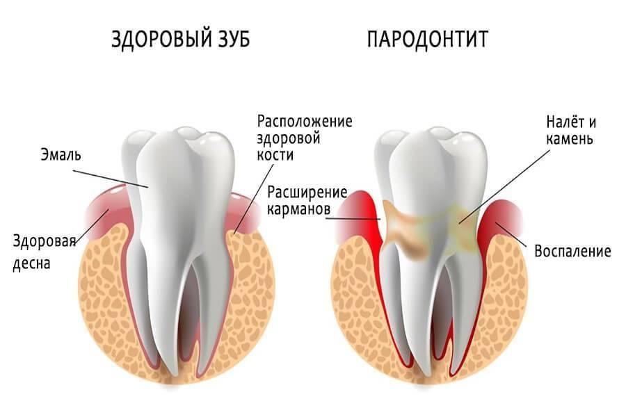 Возможные причины кровоточивости десен при чистке зубов