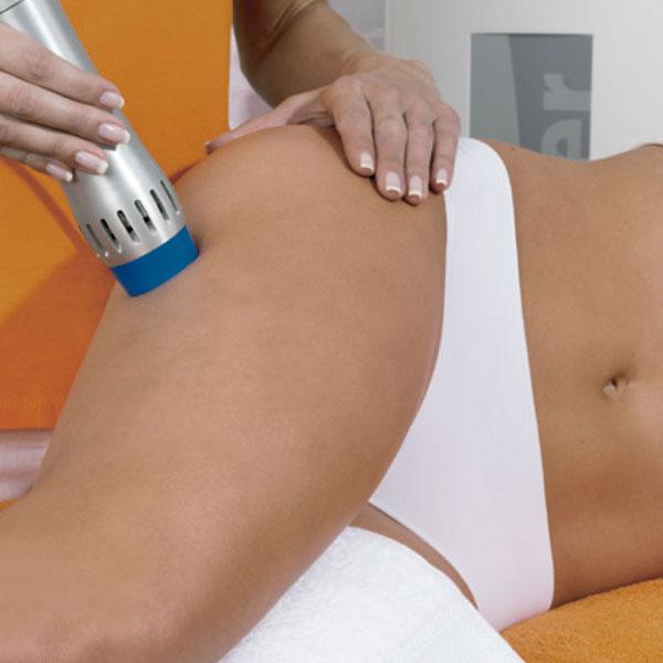 Ударно — волновая терапия против целлюлита
