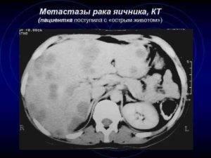 «тихий убийца»: первые симптомы рака яичников