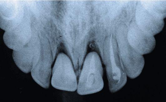 Перелом зуба: симптомы, диагностика, методы лечения, советы