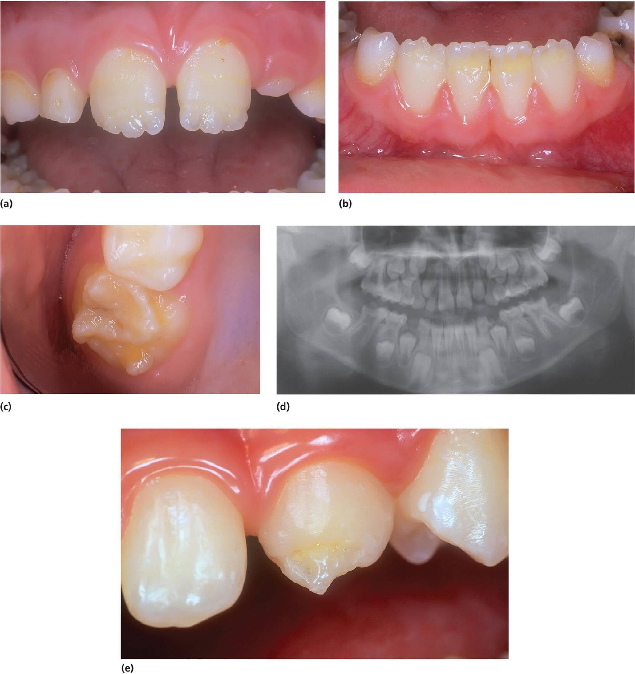 Гипоплазия эмали молочных зубов: симптомы и причины возникновения, нюансы лечения и профилактика