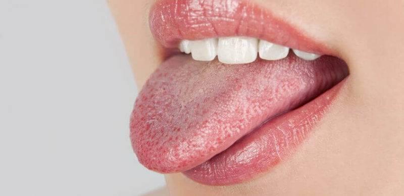 Грибковая инфекция на языке