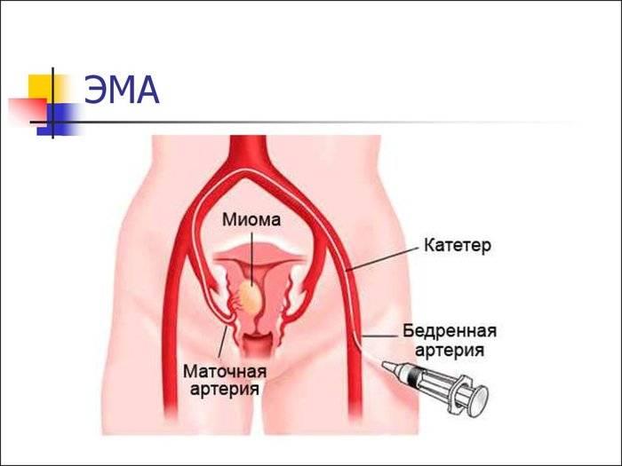 Эмболизация миомы матки – плюсы и минусы