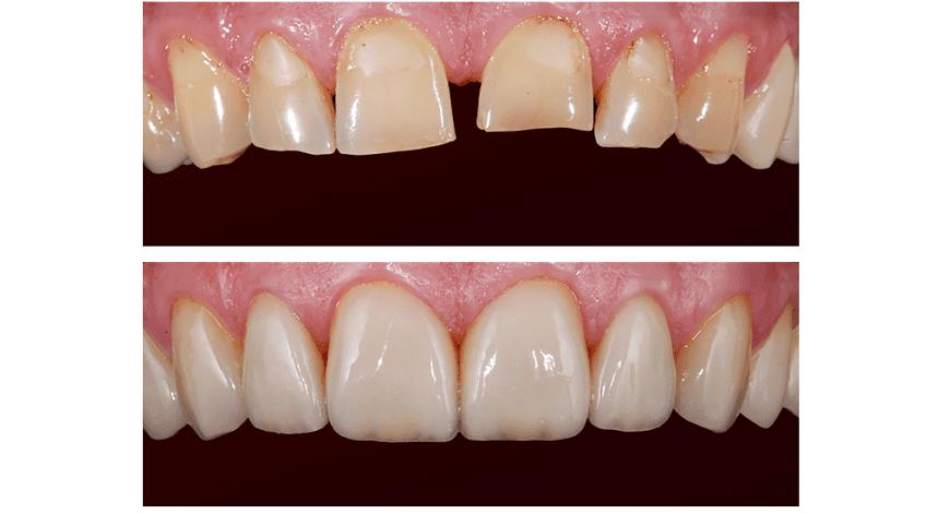 Лечение патологической стираемости зубов