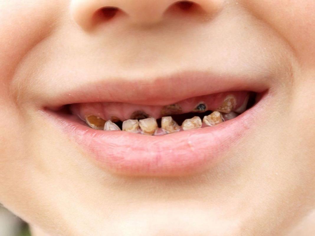 Последствия гнилых зубов для здоровья