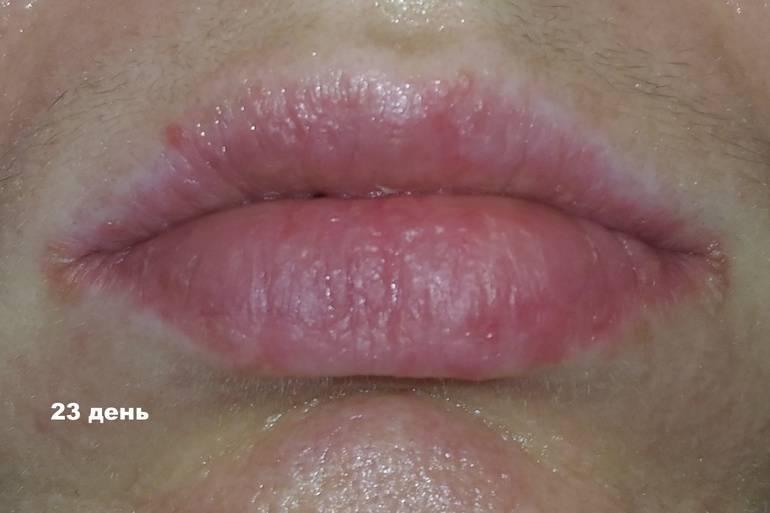 Белый налет в уголках губ у взрослых при разговоре