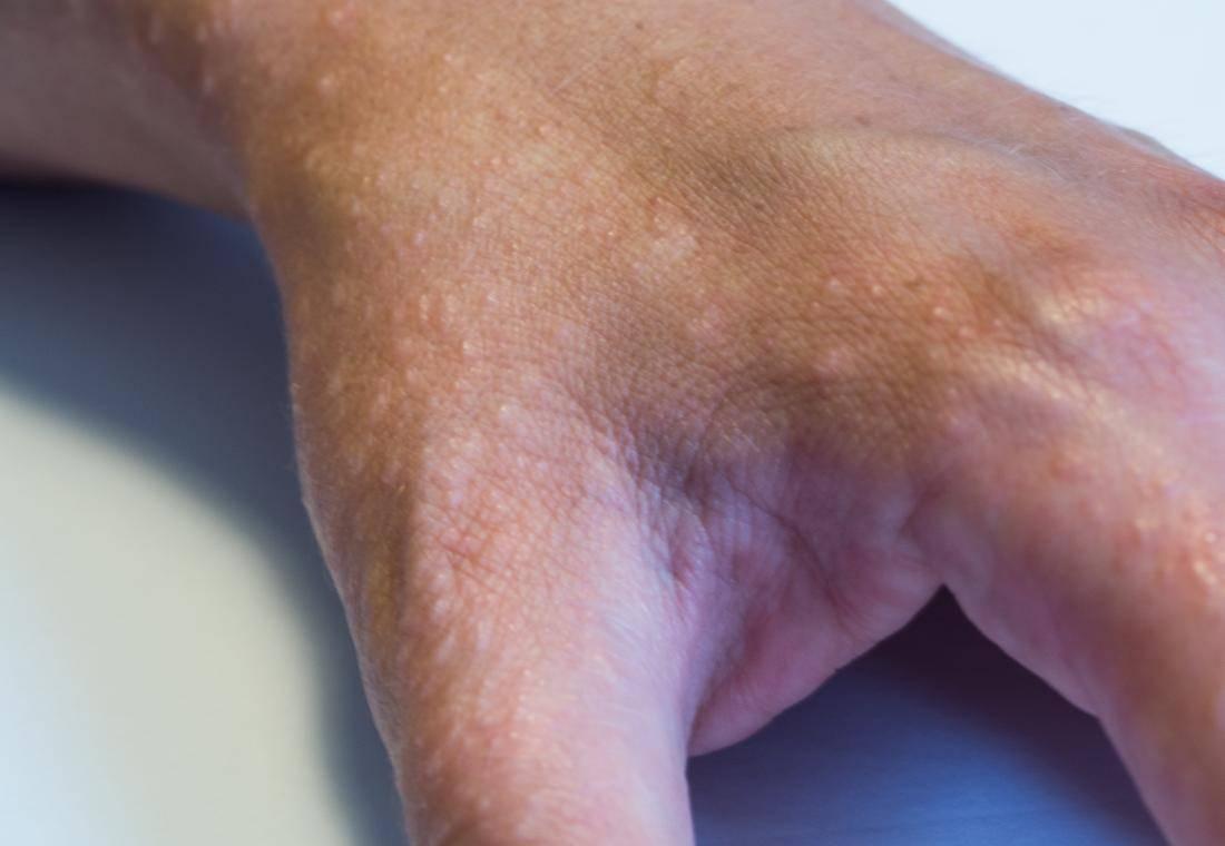 Экзема на руках: начальная стадия, причины, симптомы