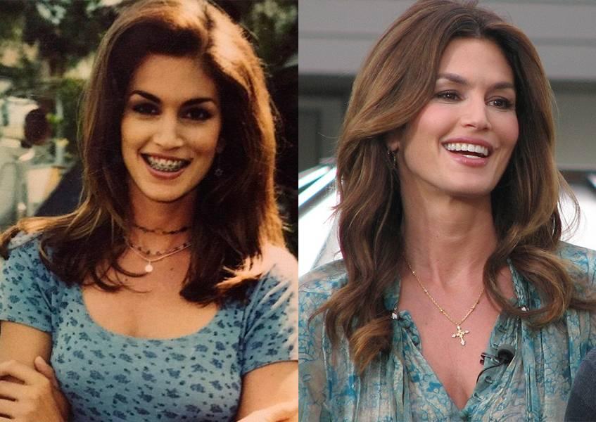 Звезды в брекетах: фотографии знаменитостей до и после