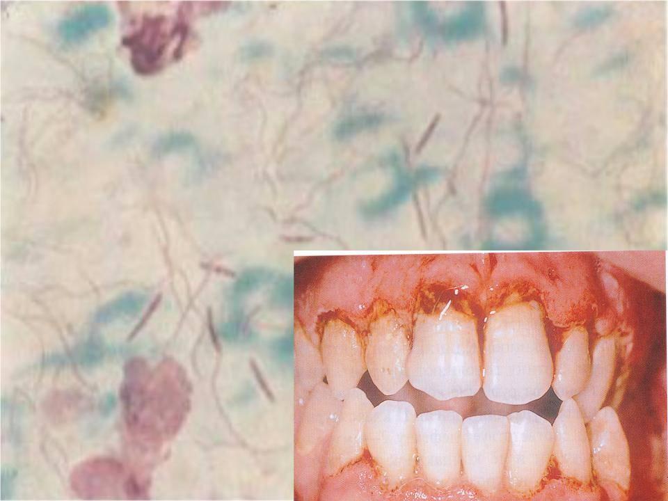 Гингивостоматит: виды, причины, симптомы и лечение