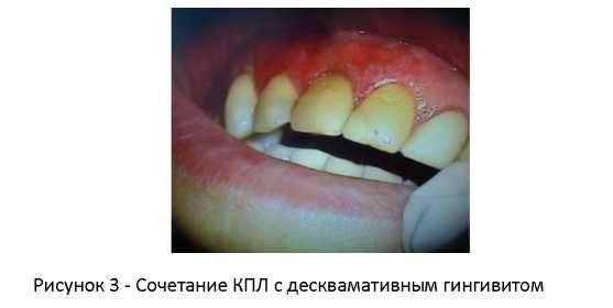 Как выглядят стоматиты на щеке, что с ними делать и как лечить?