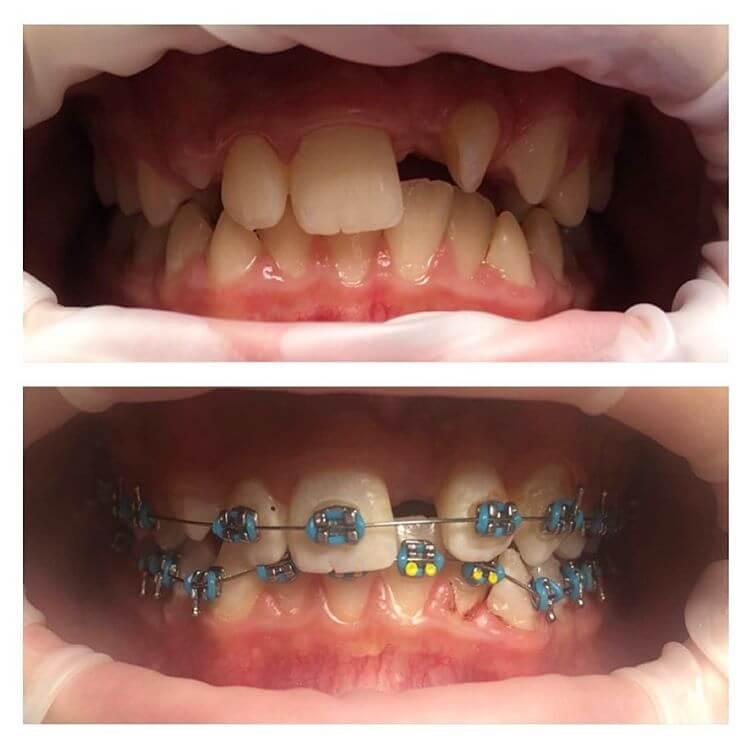 Как получить правильный прикус и красивую улыбку: можно ли ставить брекеты, если нет одного зуба