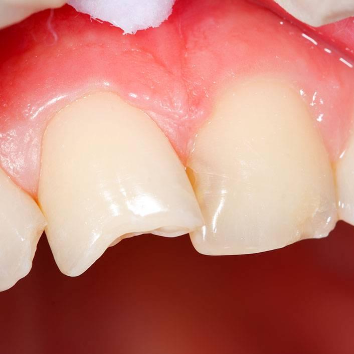 Что делать, если сломался зуб, а корень остался в десне — какие принимать меры?