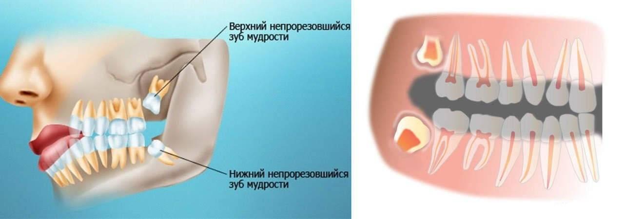 Причины появления и лечение головной боли, отдающей в зубы и челюсть