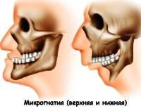 Аномалии развития и прорезывания зубов