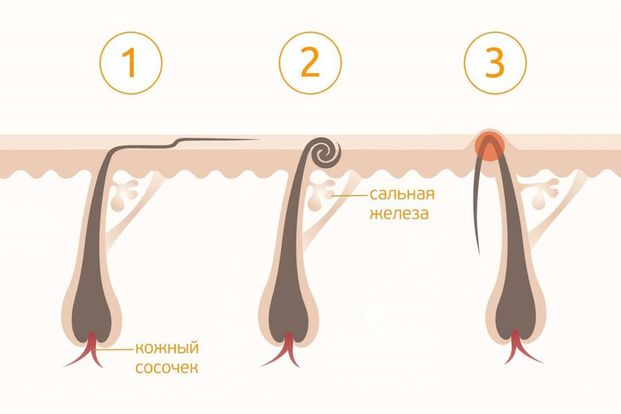 Длина волос для шугаринга: типы волос, максимальная и минимальная длина