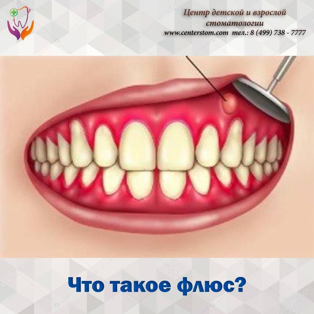 Киста на десне зуба: как выглядит, симптомы, лечение в домашних условиях