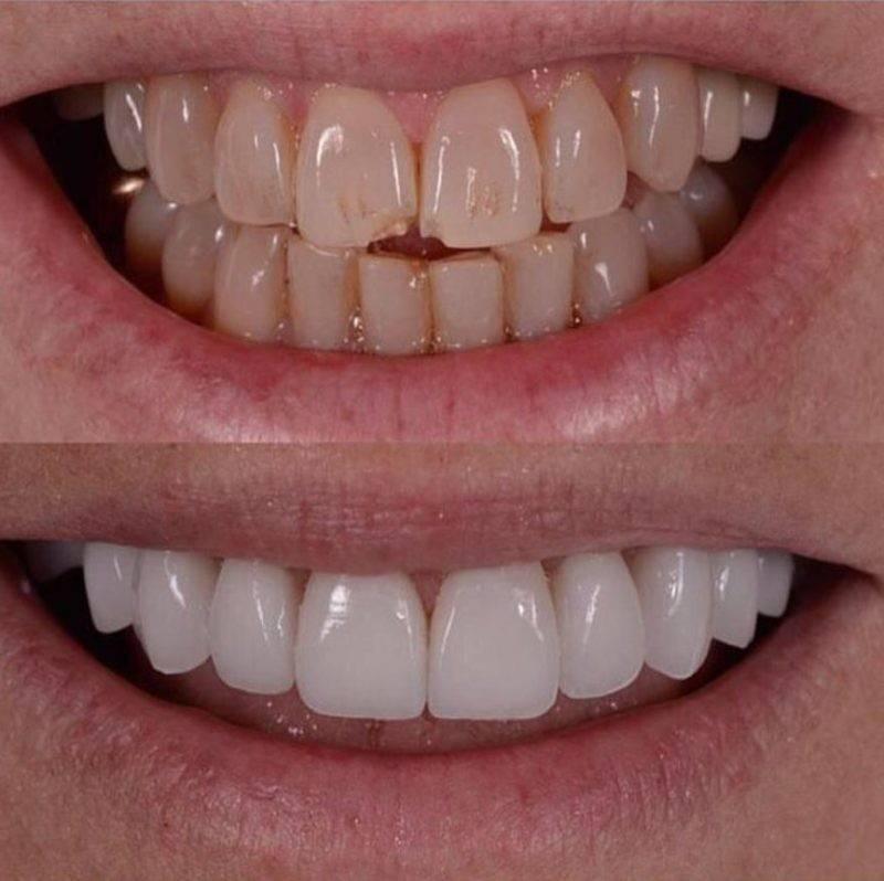 Виниры на зубы в северск