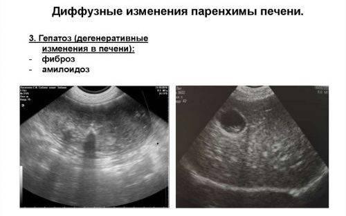 Диффузно неоднородные изменения структуры поджелудочной железы