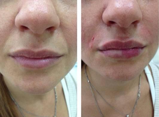 Что делать, если после увеличения губ гиалуроновой кислотой образовался фиброз