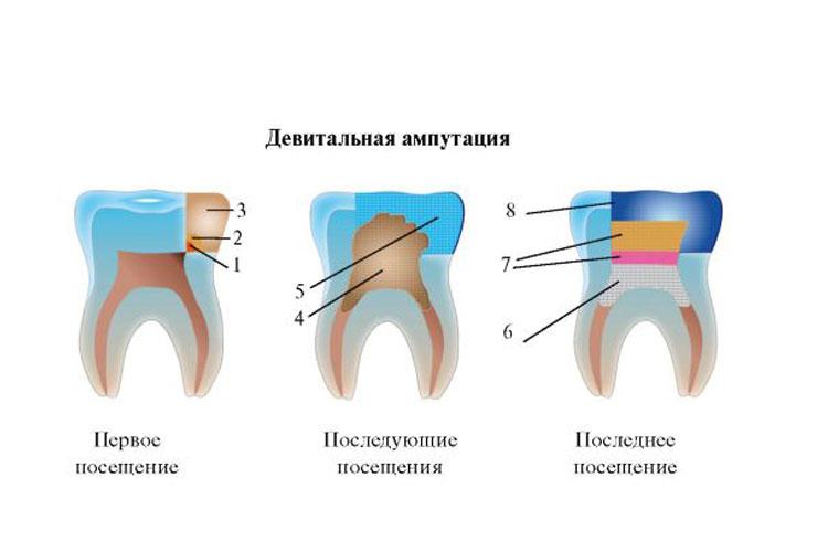 Пульпоэктомия (ампутация, экстирпация пульпы)