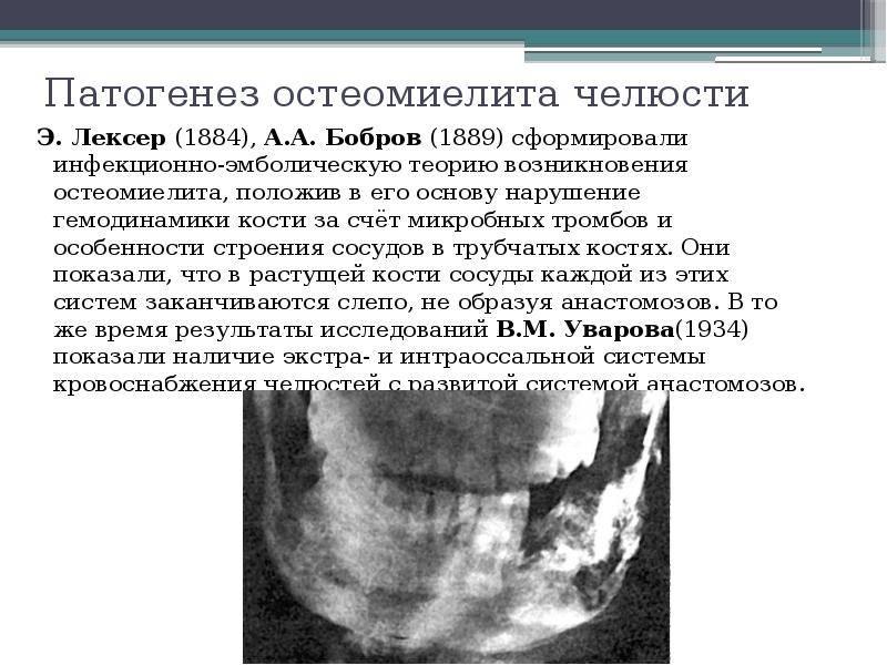 Остеомиелит челюсти