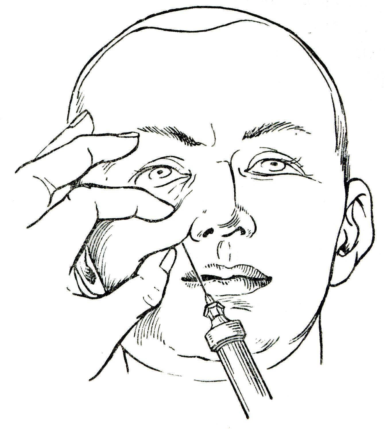 Как выполняется проводниковая анестезия в стоматологии?